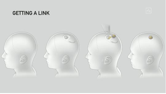 """周鸿祎:马斯克""""脑机接口""""将带来人脑数据安全挑战"""